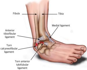 Ankle Disorders