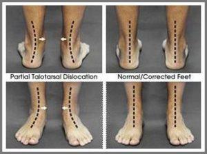 Corrected Flat Feet
