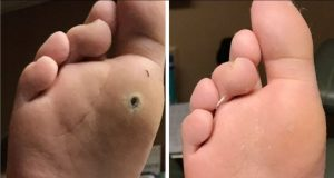 Wart Before/After