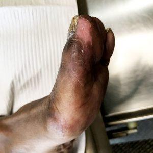 Visit 5 (healed)
